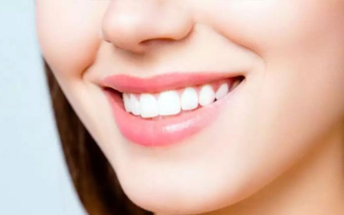 Lợi ích khi niềng răng