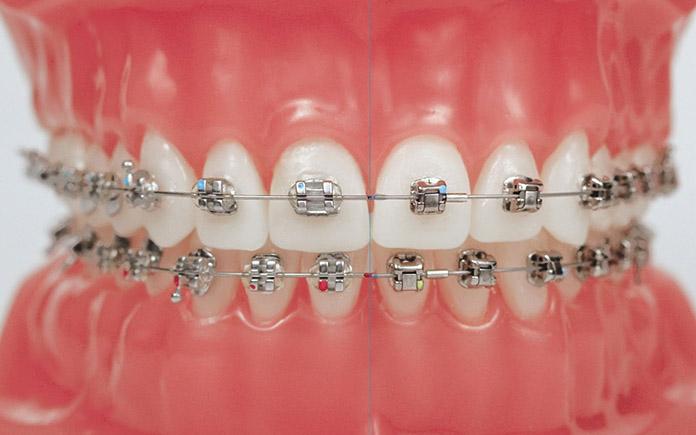 Niềng răng bằng mắc cài kim loại